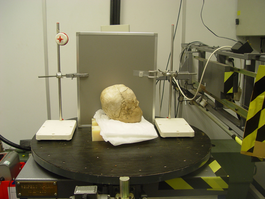 The Jericho skull in the radiography laboratory. The grey cassette behind the skull contains the X-ray film.