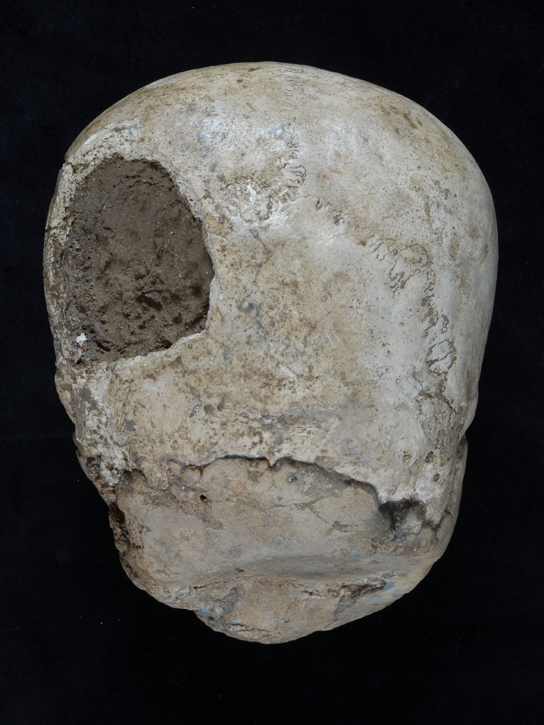 View of the back of the skull showing the hole made in the bone and the plaster base.