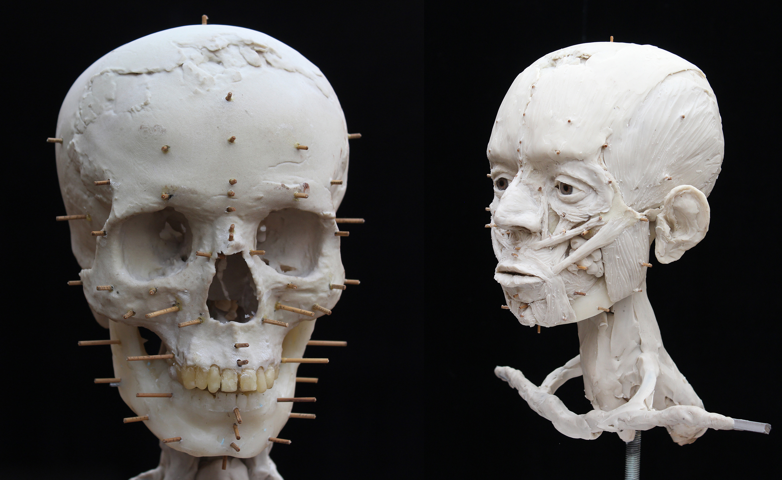 The 3D printed skull used to start facial reconstruction (left). An early stage in the reconstruction process – applying the muscles to the skull (right).